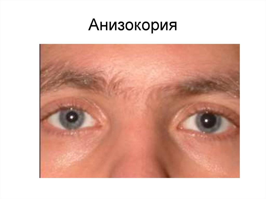 Зрачки разного размера, фото, причины, лечение.
