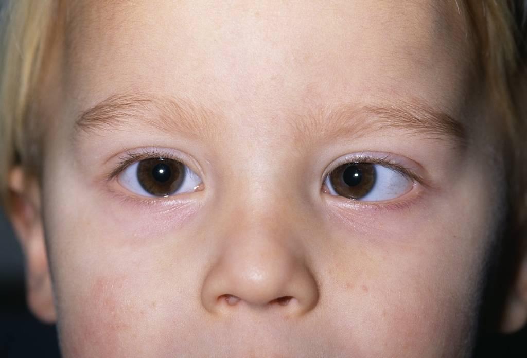 Анизокория у детей