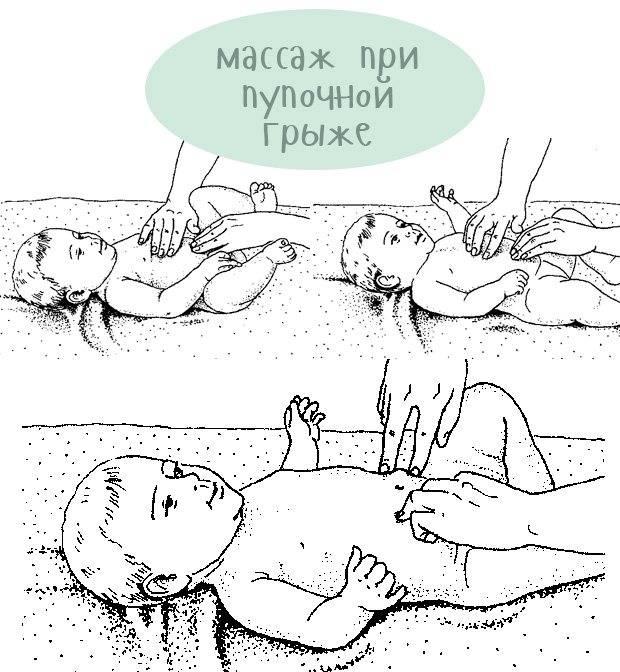 Пупочная грыжа у детей, лечение и операция - луняка андрей николаевич