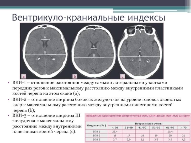 Герминома головного мозга