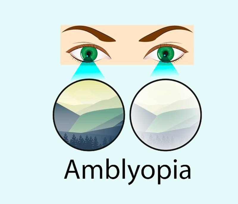 ᐈ что такое амблиопия?  ~【диагностика и лечение в киеве】