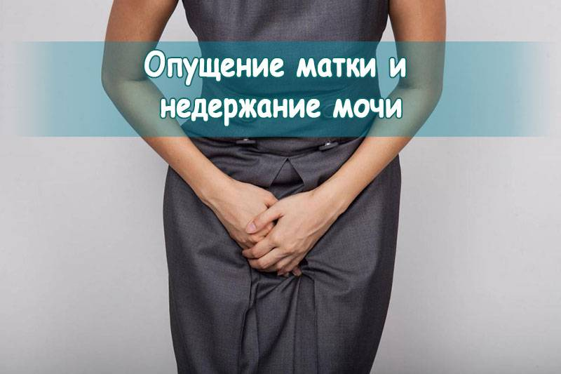 Опущение матки | симптомы и лечение опущения матки | компетентно о здоровье на ilive
