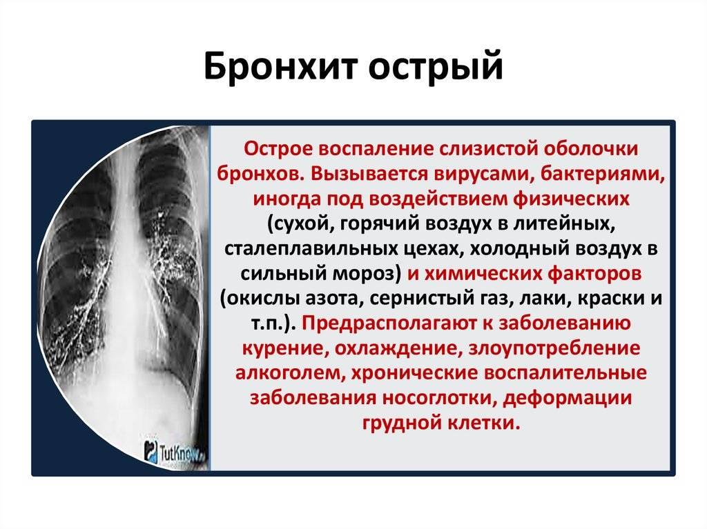 Бронхит у детей: острый бронхит, острый бронхиолит, острый обструктивный бронхит (симптомы, диагностика, лечение)