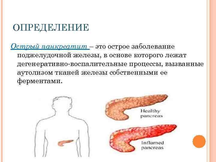 Панкреатит хронический