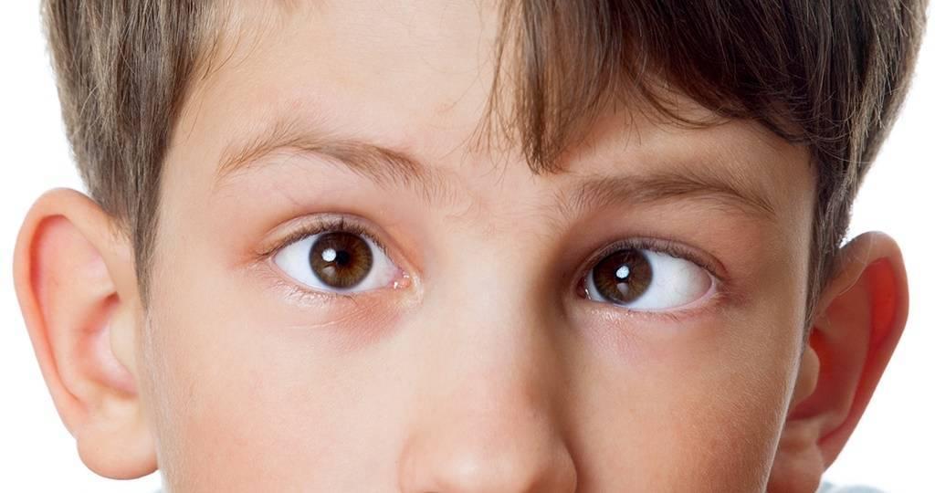 Косоглазие у взрослых: причины возникновения и методы лечения
