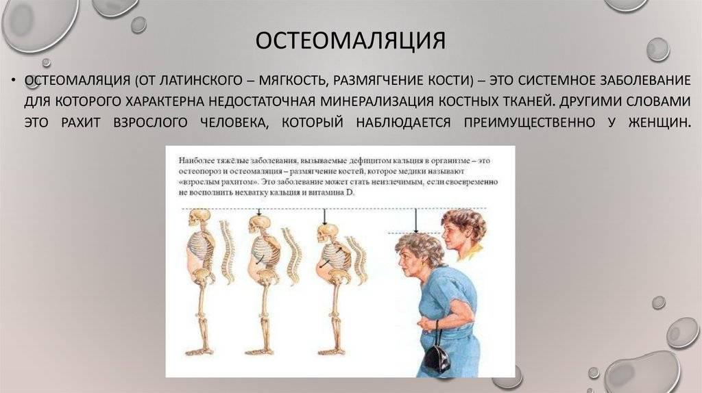Акроцианоз. почему на руках и ногах появляются синие пятна?