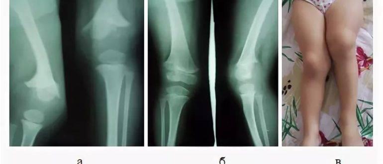 Остеомиелит. причины, симптомы, диагностика и лечение остеомиелита.