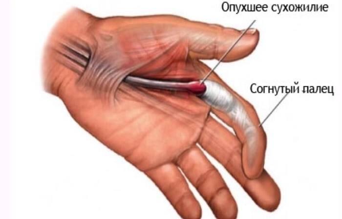 Безоперационное лечение щелкающего пальца (болезнь нотта) - estetik international | aesthetic plastic surgery estetik international | aesthetic plastic surgery
