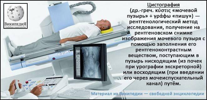 Что такое цистография и как она проводится