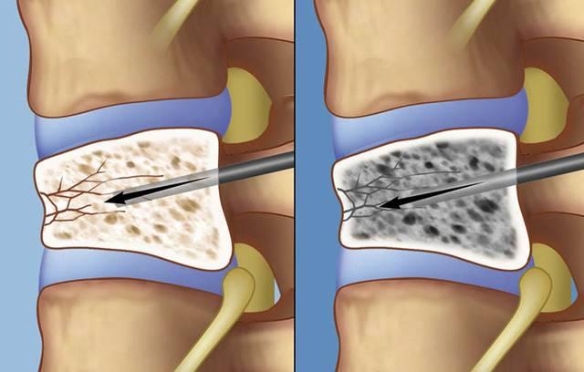 Лечение сколиоза без операций и в любом возрасте