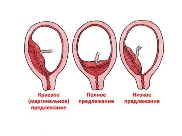 Выделения на ранних сроках беременности   eurolab   гинекология