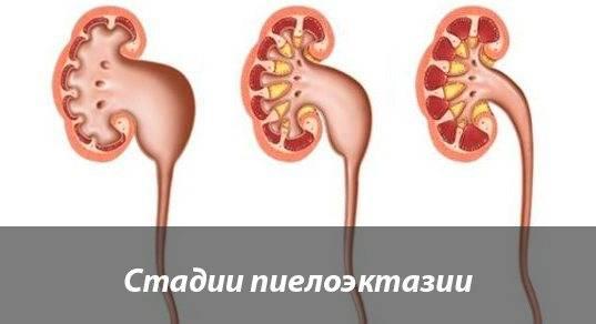 Уретерогидронефроз. причины, симптоматика, диагностика и лечение уретерогидронефроза