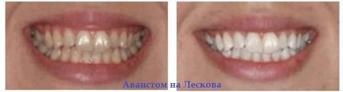 Лаки для зубов: виды, показания, способы применения, альтернативы