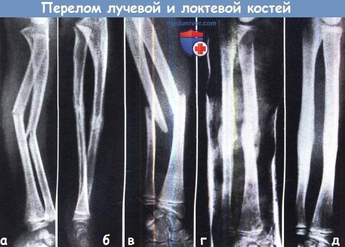 Перелом лучевой кости в типичном месте: причины, симптомы, диагностика, лечение | компетентно о здоровье на ilive