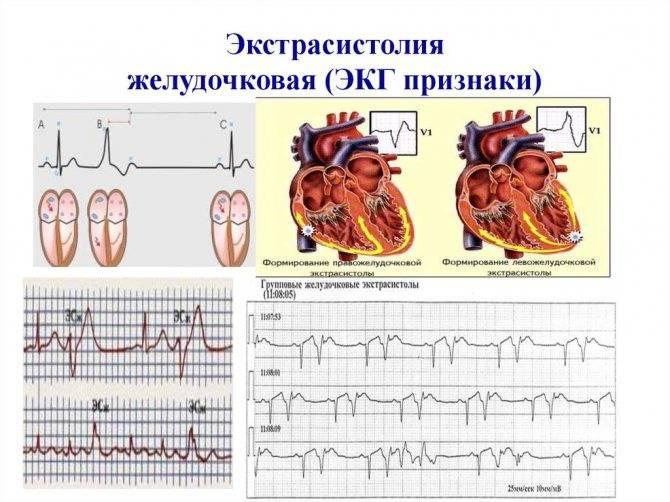 Как заподозрить экстрасистолию у ребнка советы от детского кардиолога