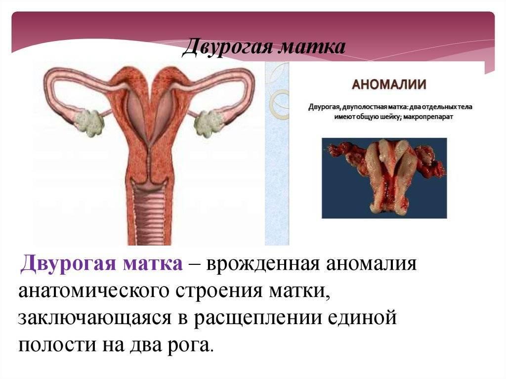 Седловидная матка: симптомы и лечение