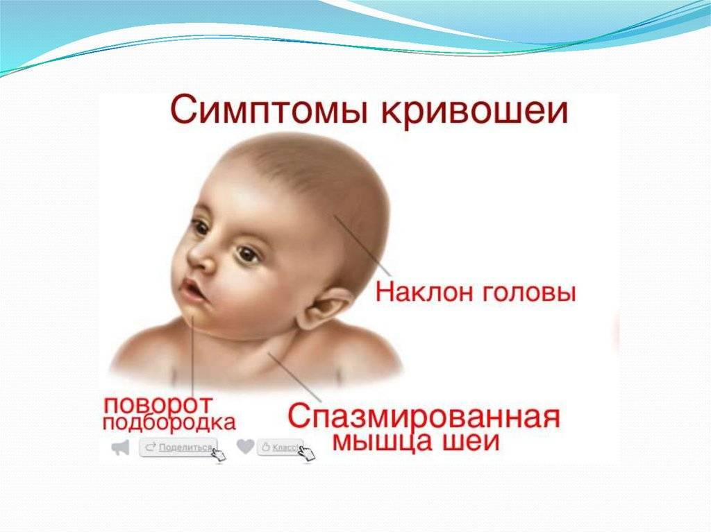 Причины кривошеи и косоглазия у новорожденных