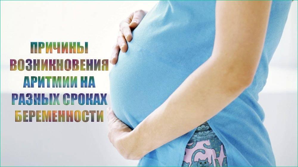 Синусовая тахикардия при беременности: что делать и чем лечить