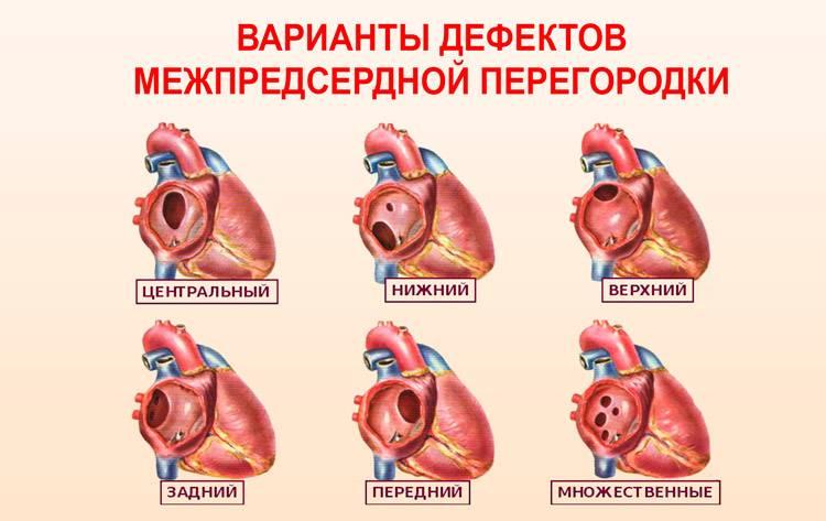 Эхокардиография при дмпп – узи в красноярске