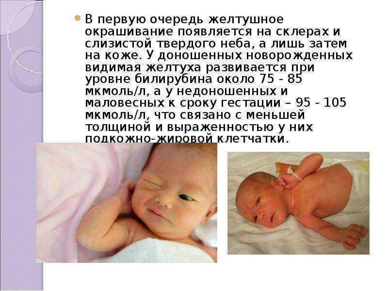 Когда новорожденный начинает видеть, узнавать маму. как видят новорожденные?