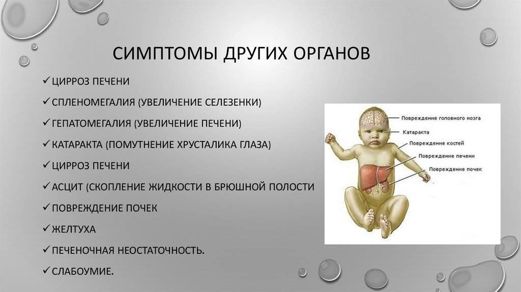 Случай галактоземии у новорожденного ребенка с низкой массой тела   кравченко   медицинский вестник юга россии