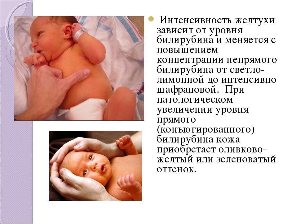 Желтуха у новорожденных – симптомы, виды, лечение