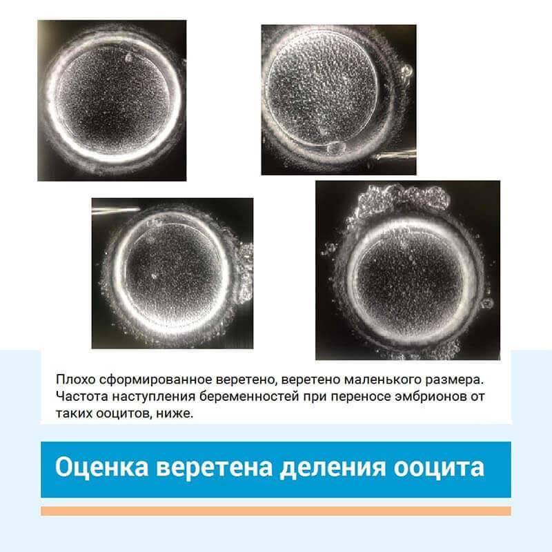 Классификация эмбрионов для переноса