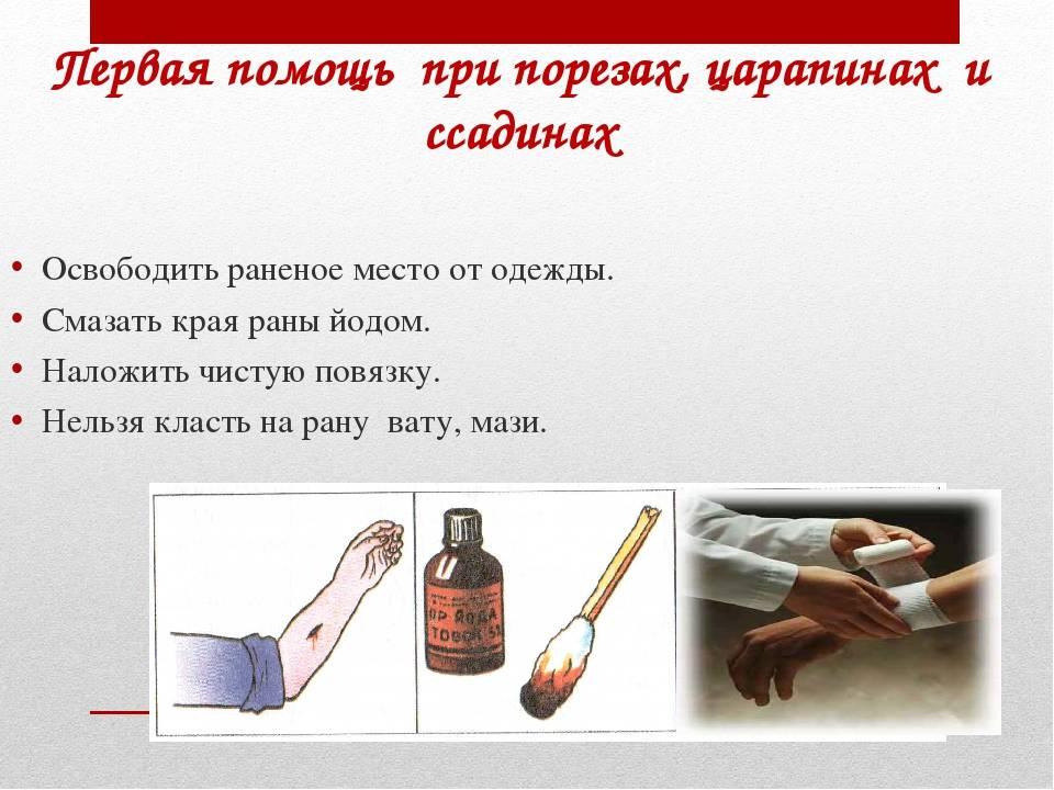 Ссадины и царапины: обработка, лечение и стадии заживления