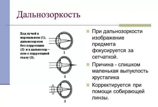 Миопический астигматизм обоих глаз, лечение сложного миопическиого астигматизма в клинике fedorovmedcenter.ru