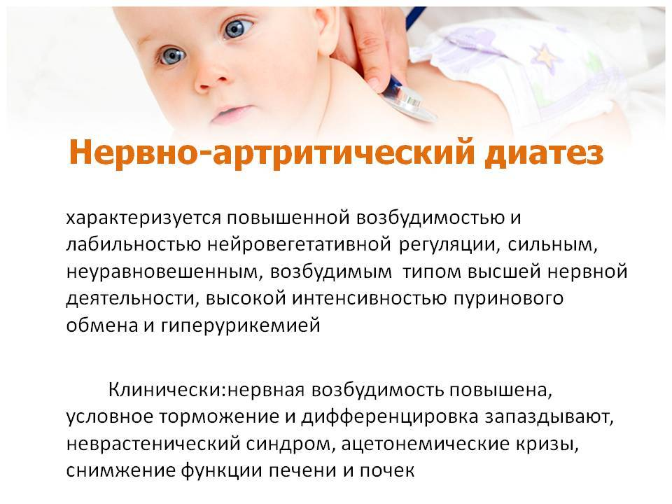 Нервно-артритический диатез