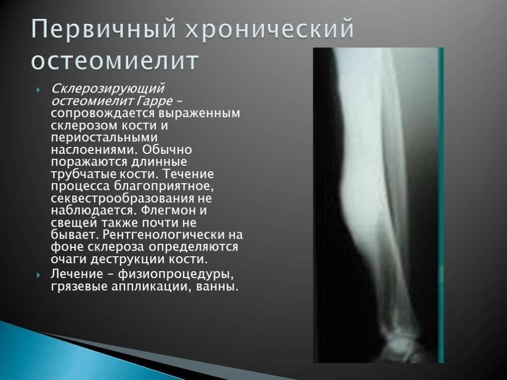 Остеомиелит   симптомы и лечение остеомиелита   компетентно о здоровье на ilive