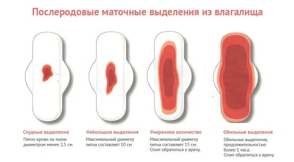 Нерегулярные или избыточные маточные кровотечения