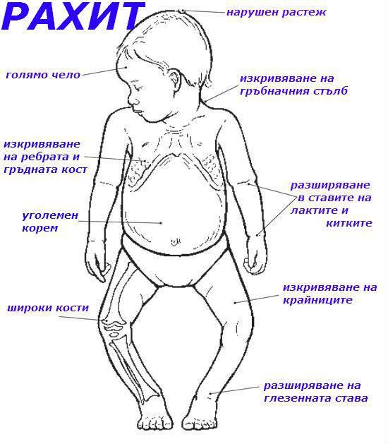 Рахит - симптомы болезни, профилактика и лечение рахита, причины заболевания и его диагностика на eurolab