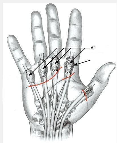 Безоперационное лечение щелкающего пальца (болезнь нотта)