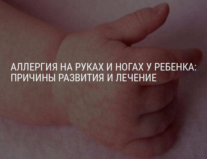 Холодные руки у ребенка – болезнь или норма?