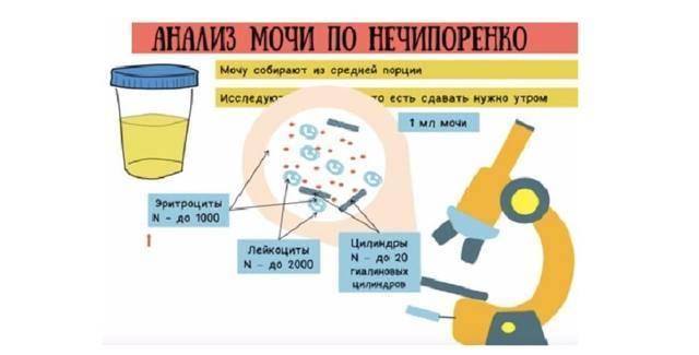 Эритроциты в моче у детей
