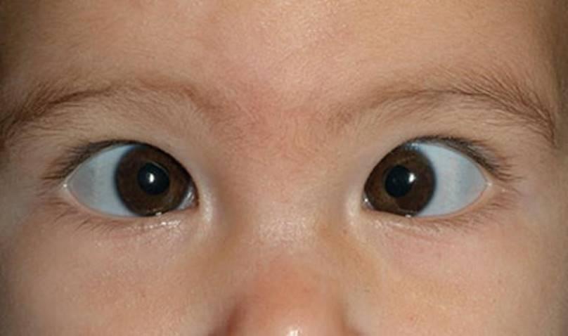Дальнозоркость у детей: причины, симптомы, степени