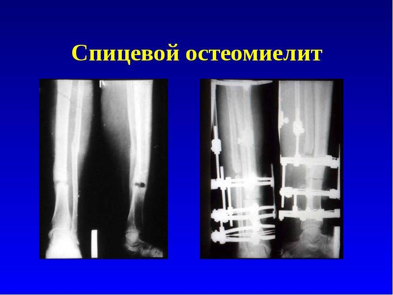 Диагностика остеомиелита и септического артрита у детей на снимках мрт и кт костей конечностей