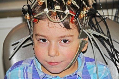 Электроэнцефалография (ээг) – запись на исследование в москве