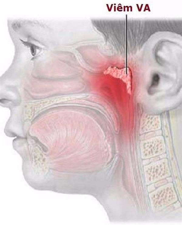 Лечение заложенности уха при насморке