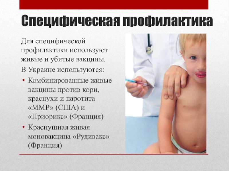 Корь у детей: симптомы, осложнения, профилактика