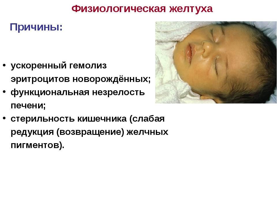 Желтуха у детей: лечение и профилактика