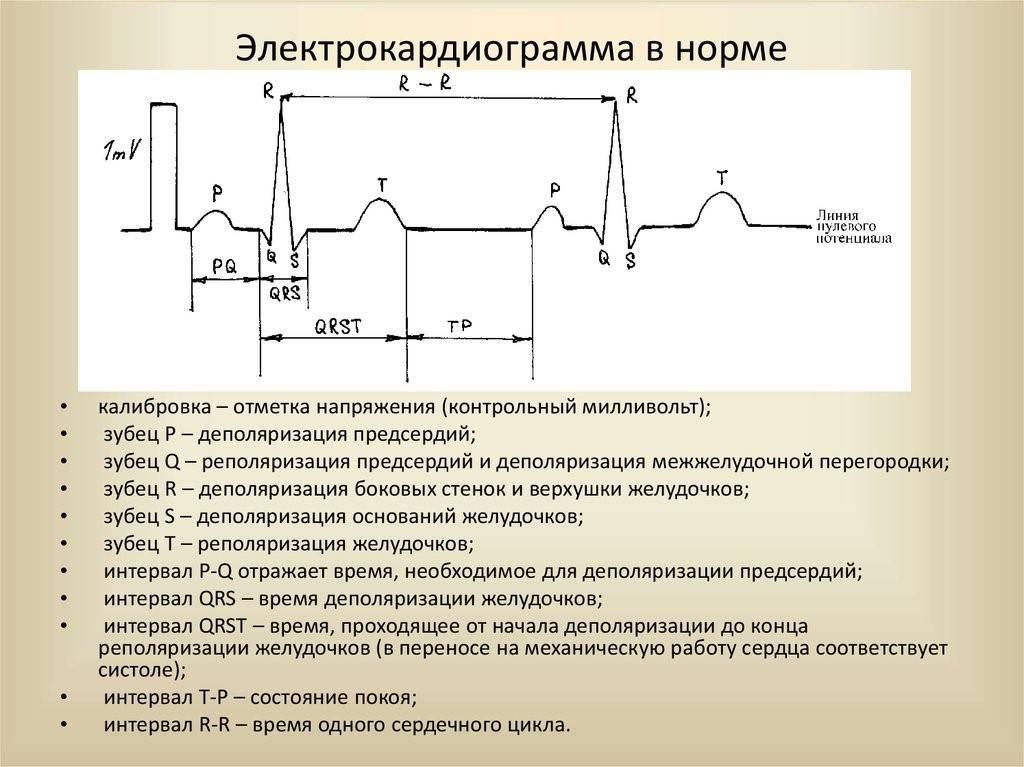 Отличия экг и эхо кг (узи сердца) — в чём разница?