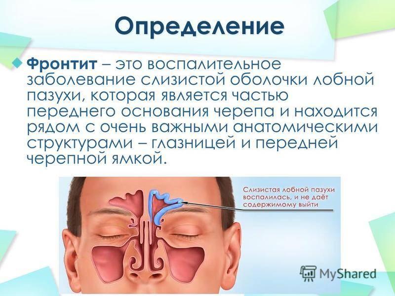 Хронический синусит (хронический риносинусит)