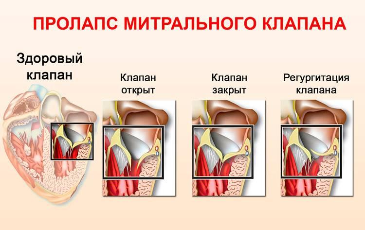 Пролапсы клапанов сердца. диагностика и лечение