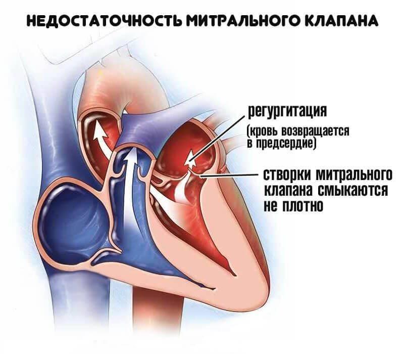Пролапс митрального клапана (пмк) у детей