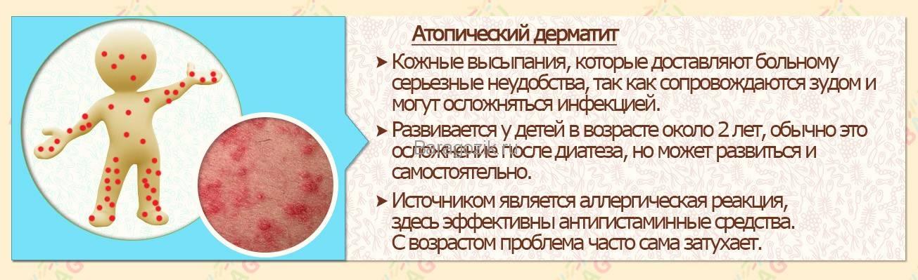 Контактный аллергический дерматит у детей: наиболее частые причины