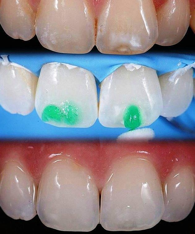 Фторлак для зубов | покрытие, фото до и после, цена, отзывы
