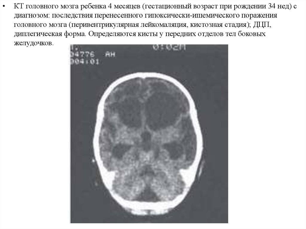 Диагностика и лечение ишемии головного мозга (сергиев посад) | парацельс