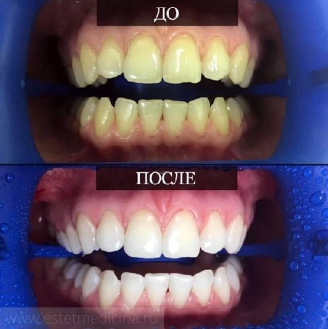 Как восстановить зубную эмаль - у стоматолога, в домашних условиях. укрепление эмали зубов